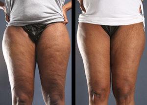 Cellulaze_Cellulite_Reduction_Women_Thighs_Buttocks_Back_Miller_2