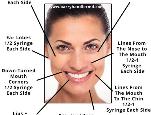 Facial volumization using Hyarulonic acid dermal fillers and Sculptra