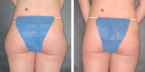 liposuction1a