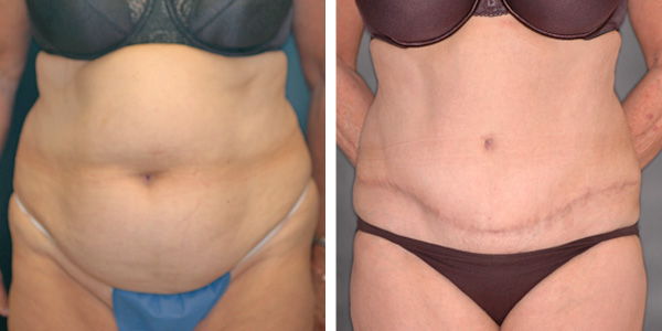 abdominoplasty1a