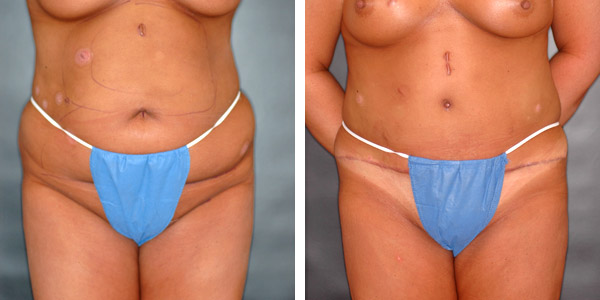 abdominoplasty2a