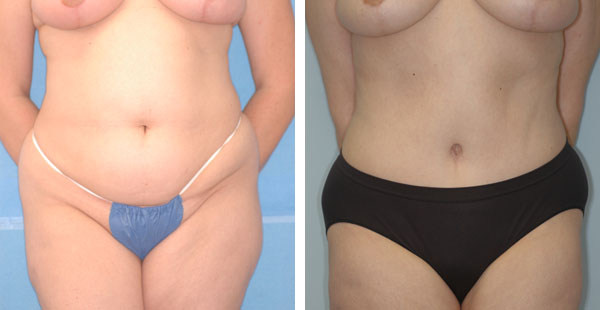 abdominoplasty3a