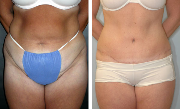 abdominoplasty4a